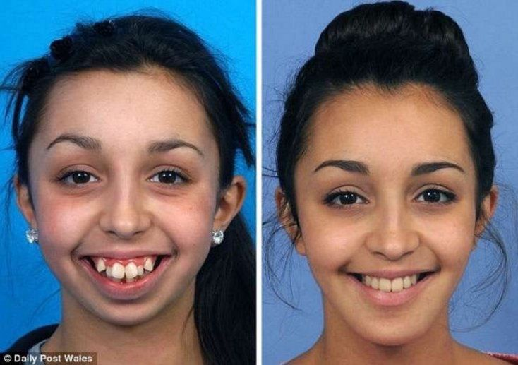 Operació de mandíbula