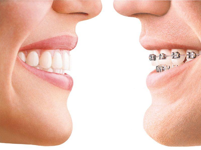 ortodoncia-invisible-04